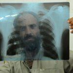 Експерти прогнозират: Ковид-19 ще върне туберкулозата в света